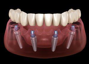 all on 4 denture